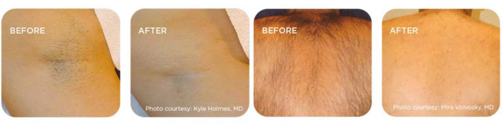 Placecol-hair-removal